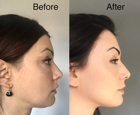 joga twarzy efekty